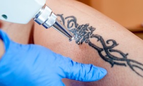 Bye Bye Ink Laser Tattoo Removal Queens New York | Tattoo Removal NYC